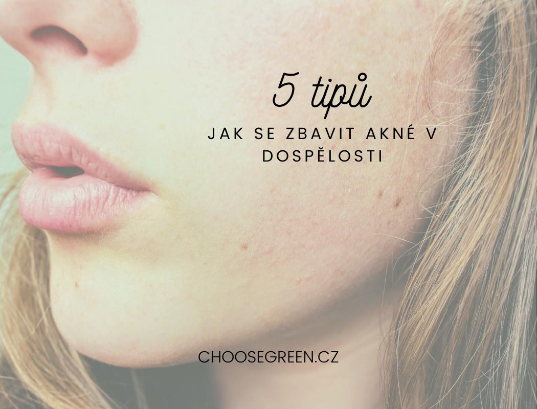 5 tipů jak se zbavit akné v dospělosti